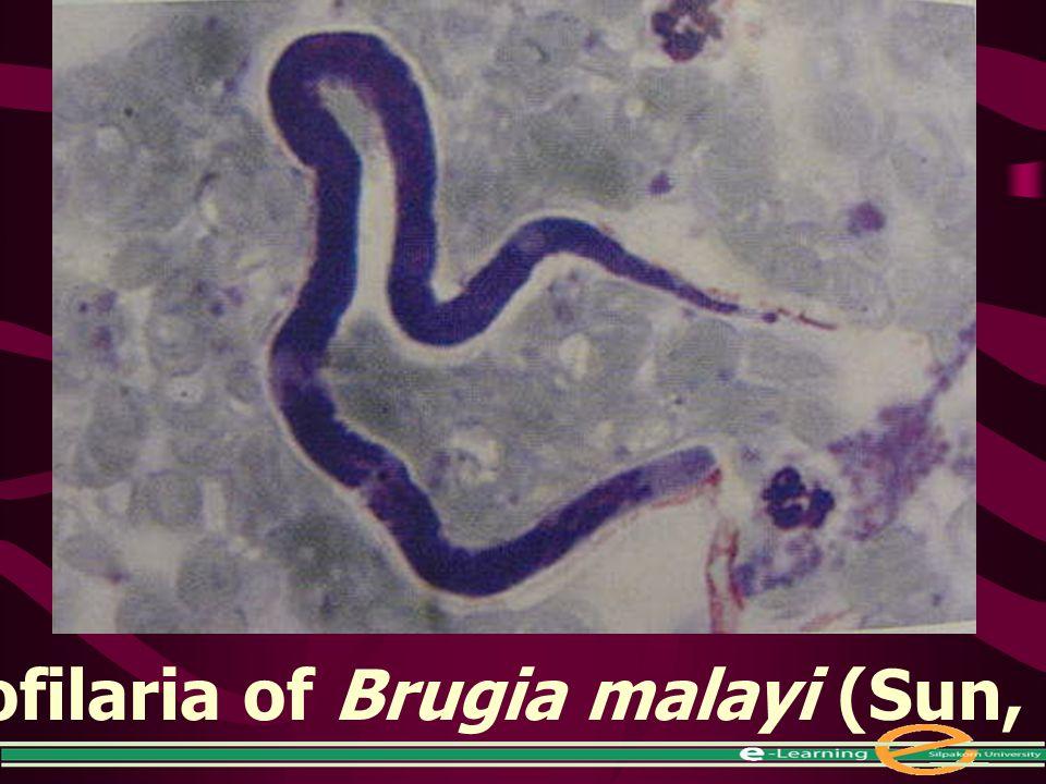 Microfilaria of Brugia malayi (Sun, 1988)