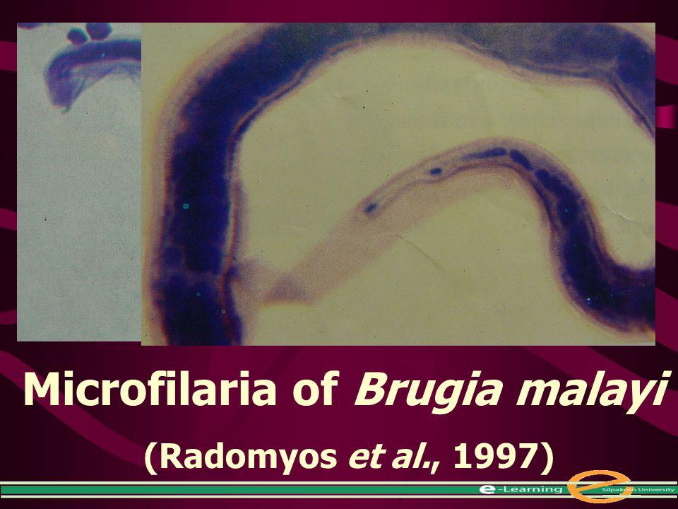 Microfilaria of Brugia malayi