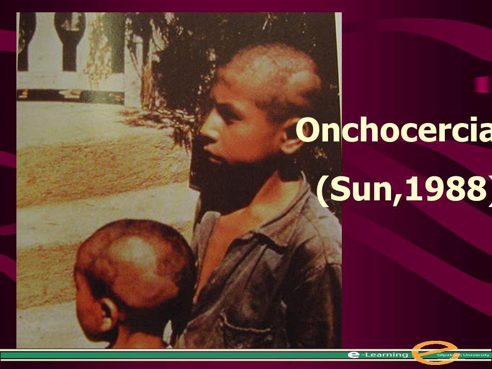 Onchocerciasis (Sun,1988)