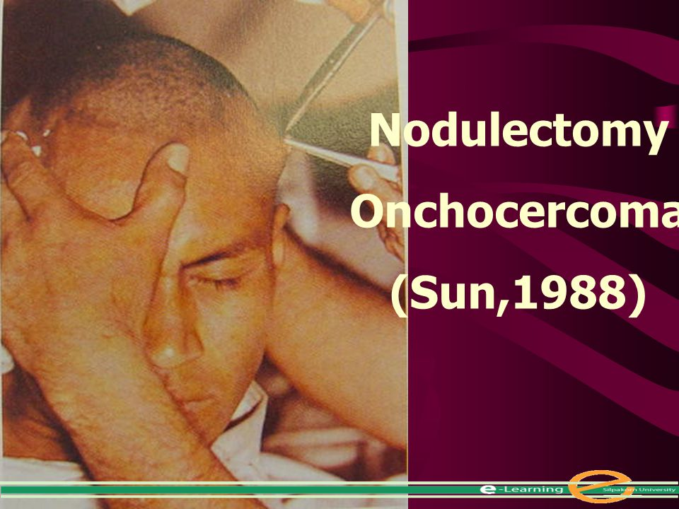 Nodulectomy Onchocercoma (Sun,1988)