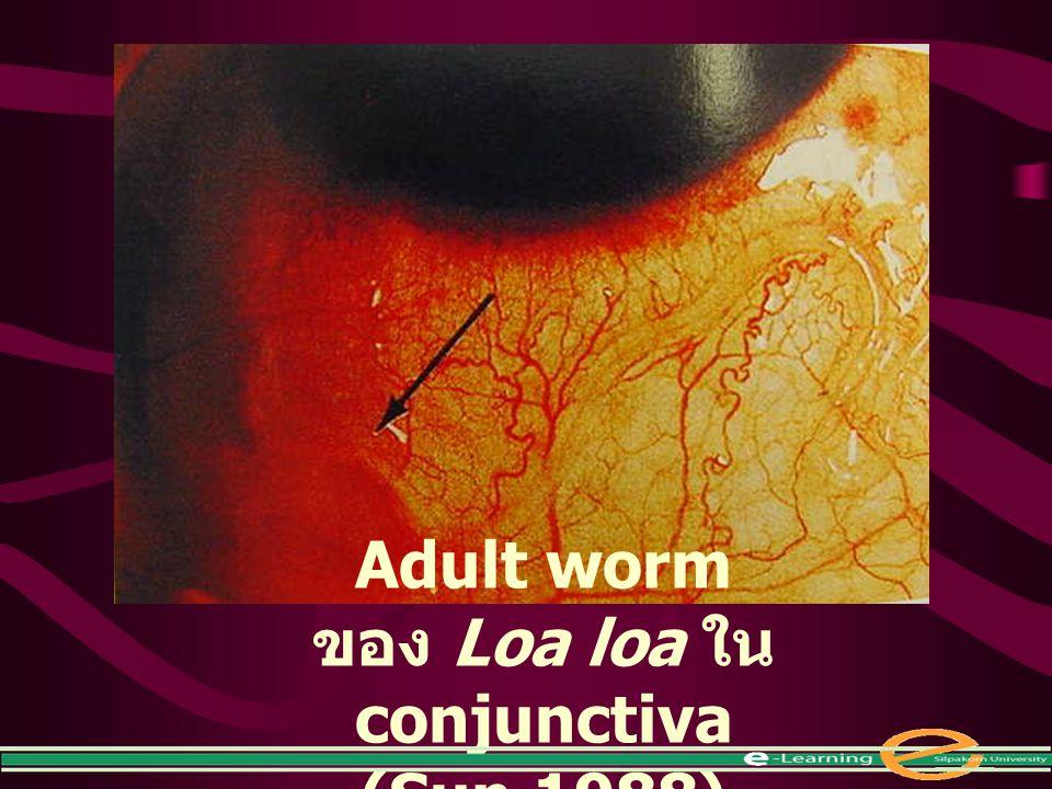Adult worm ของ Loa loa ใน conjunctiva (Sun,1988)