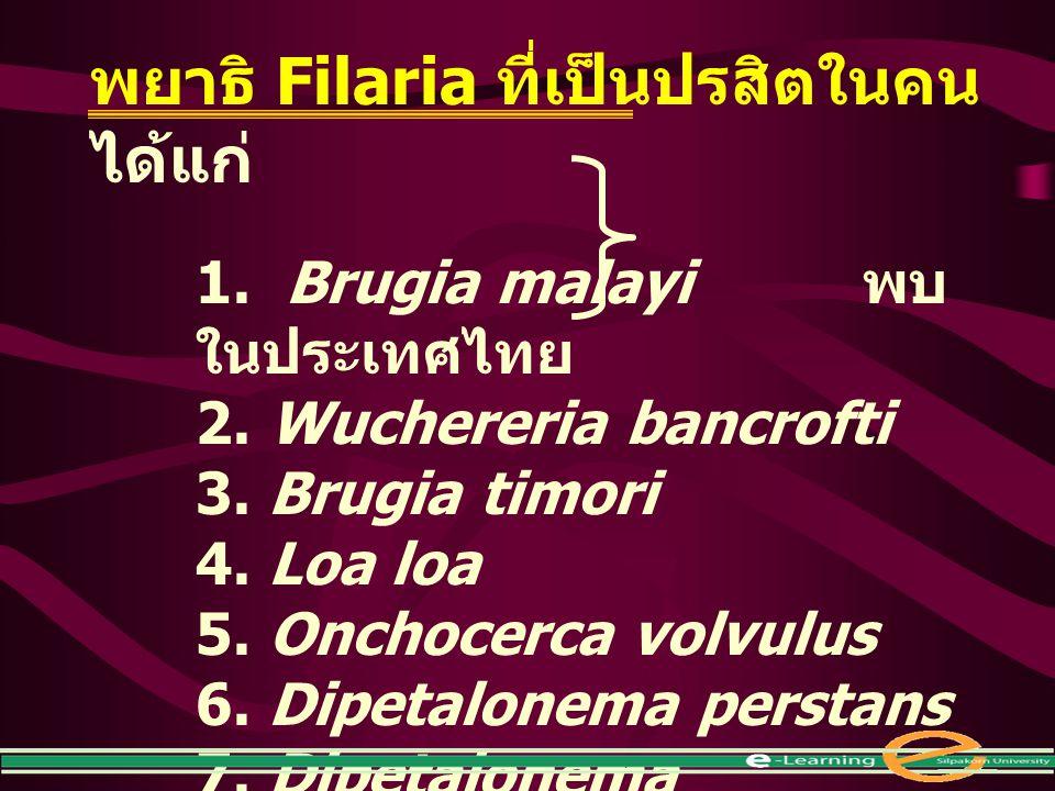 พยาธิ Filaria ที่เป็นปรสิตในคน ได้แก่