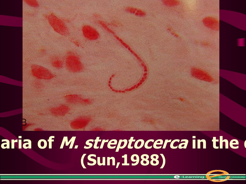 Microfilaria of M. streptocerca in the dermis