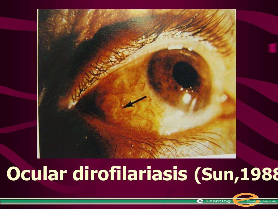 Ocular dirofilariasis (Sun,1988)