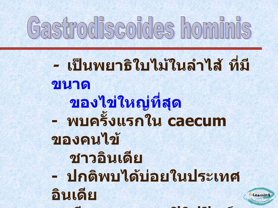 Gastrodiscoides hominis