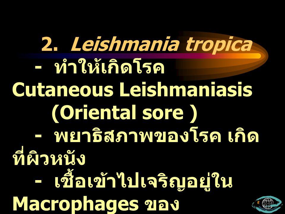 2. Leishmania tropica - ทำให้เกิดโรค Cutaneous Leishmaniasis. (Oriental sore ) - พยาธิสภาพของโรค เกิดที่ผิวหนัง.