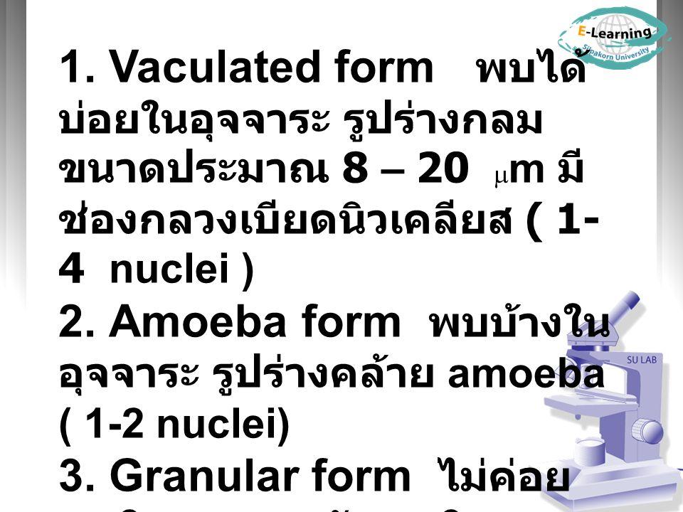 1. Vaculated form พบได้บ่อยในอุจจาระ รูปร่างกลม ขนาดประมาณ 8 – 20 m มีช่องกลวงเบียดนิวเคลียส ( 1-4 nuclei )