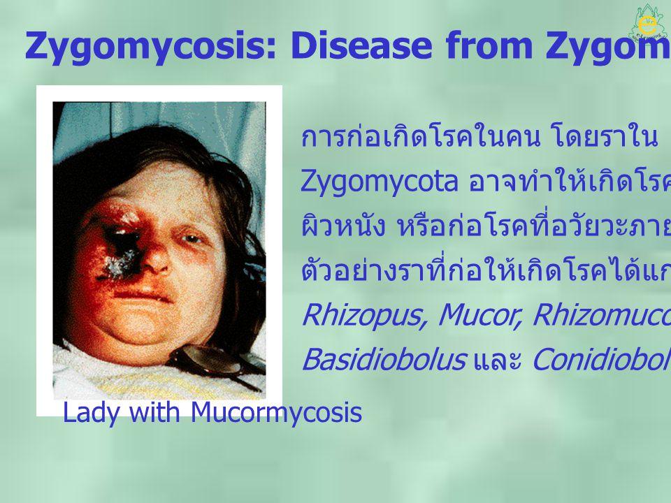 Zygomycosis: Disease from Zygomycota