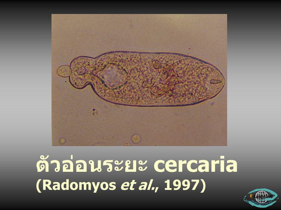 ตัวอ่อนระยะ cercaria (Radomyos et al., 1997)