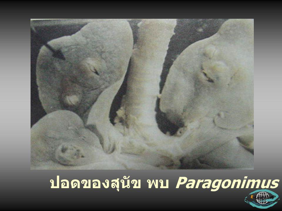ปอดของสุนัข พบ Paragonimus (Sun,1988)