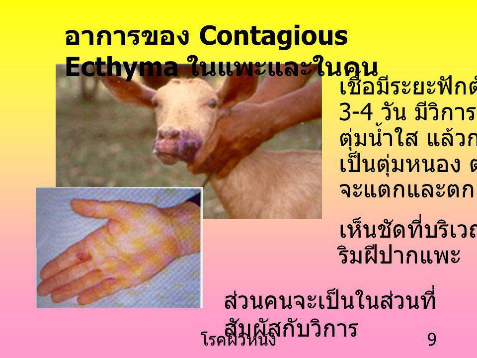 อาการของ Contagious Ecthyma ในแพะและในคน