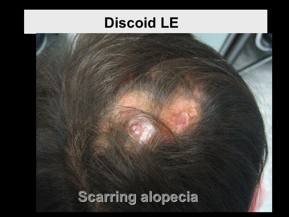 Discoid LE Scarring alopecia