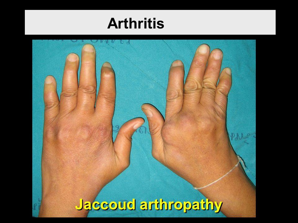 Arthritis Jaccoud arthropathy