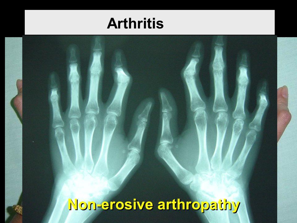 Arthritis Non-erosive arthropathy