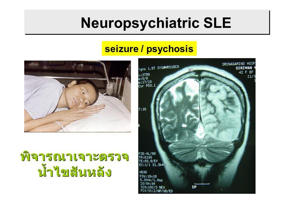 Neuropsychiatric SLE seizure / psychosis พิจารณาเจาะตรวจ น้ำไขสันหลัง