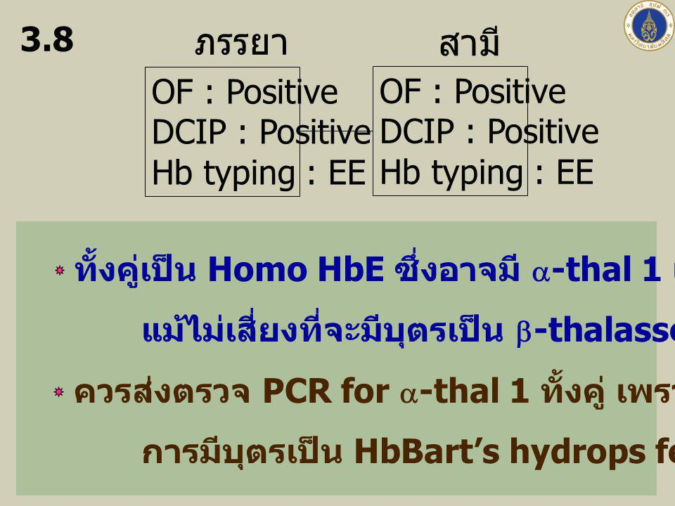 ภรรยา สามี 3.8 OF : Positive DCIP : Positive Hb typing : EE