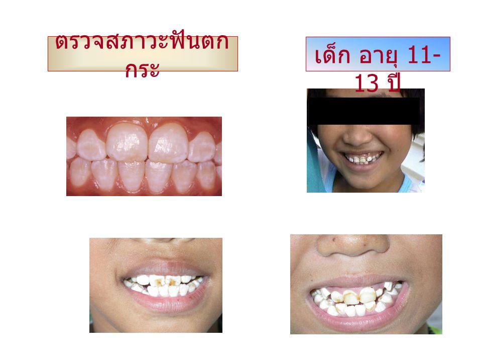 ตรวจสภาวะฟันตกกระ เด็ก อายุ 11-13 ปี