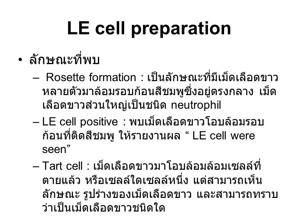 LE cell preparation ลักษณะที่พบ
