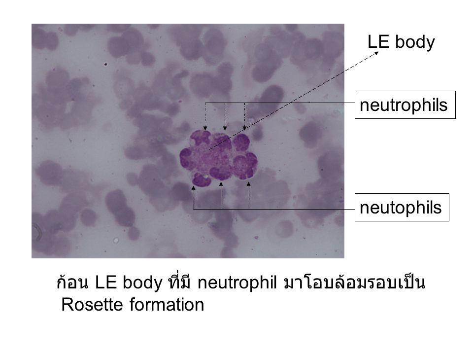 LE body neutrophils neutophils ก้อน LE body ที่มี neutrophil มาโอบล้อมรอบเป็น Rosette formation