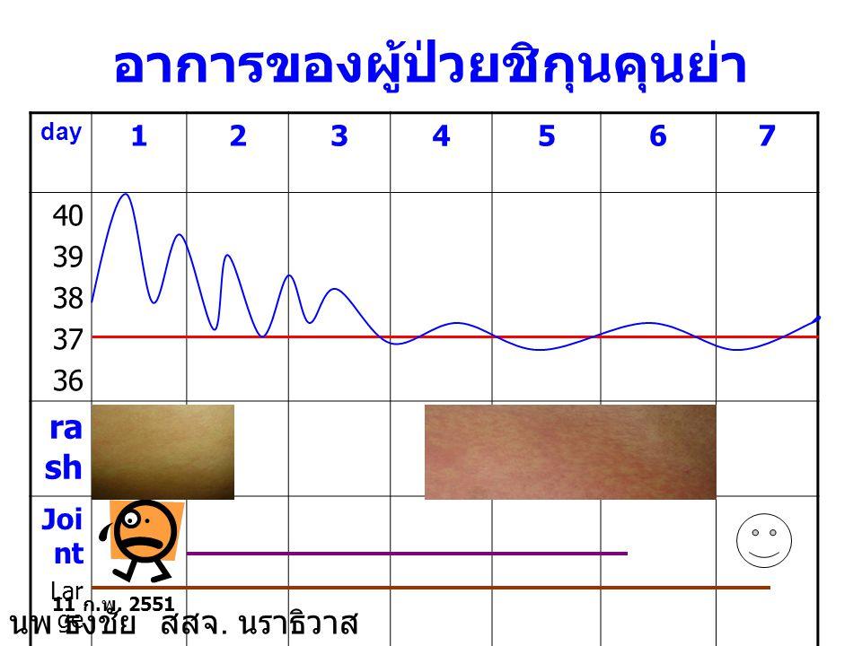 อาการของผู้ป่วยชิกุนคุนย่า