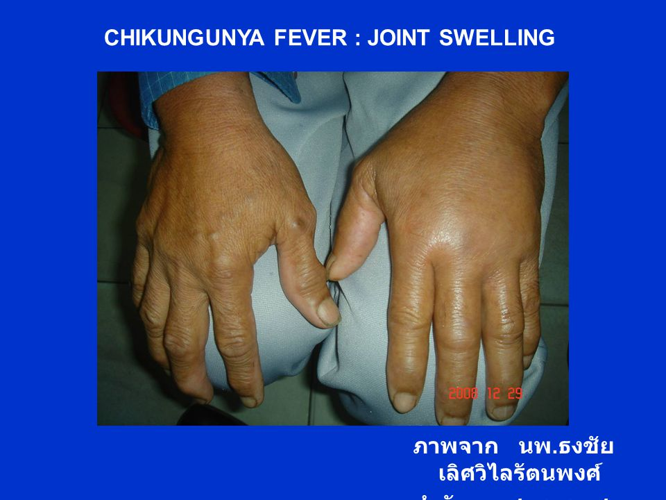 CHIKUNGUNYA FEVER : JOINT SWELLING