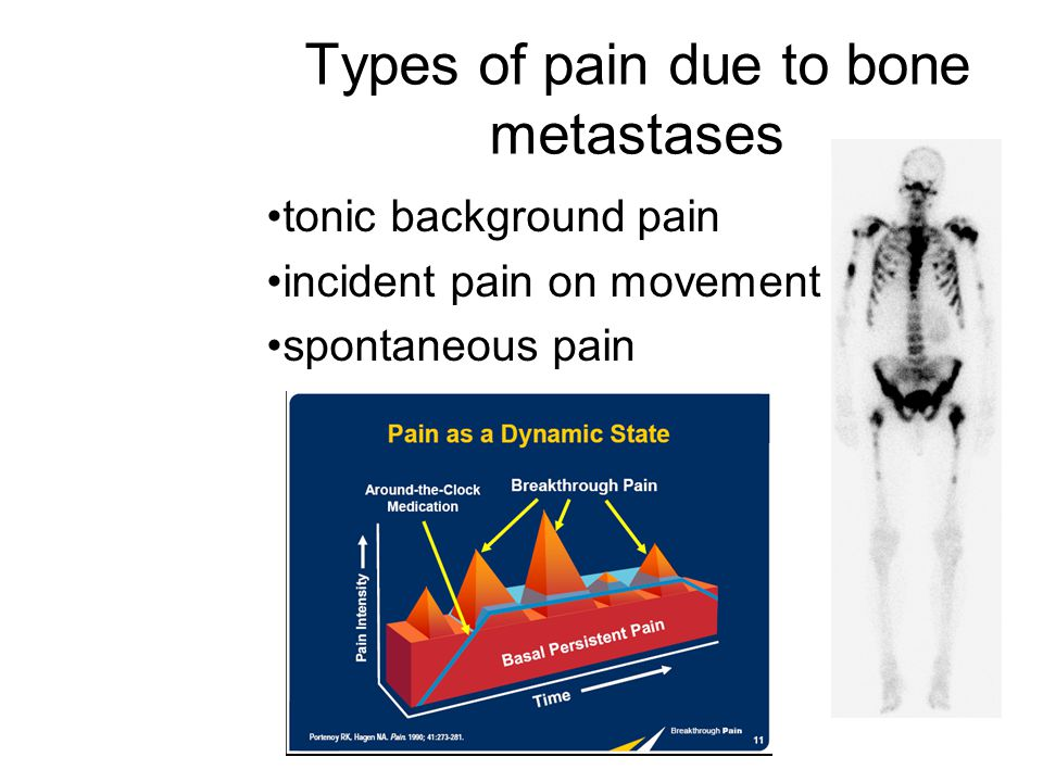 Types of pain due to bone metastases