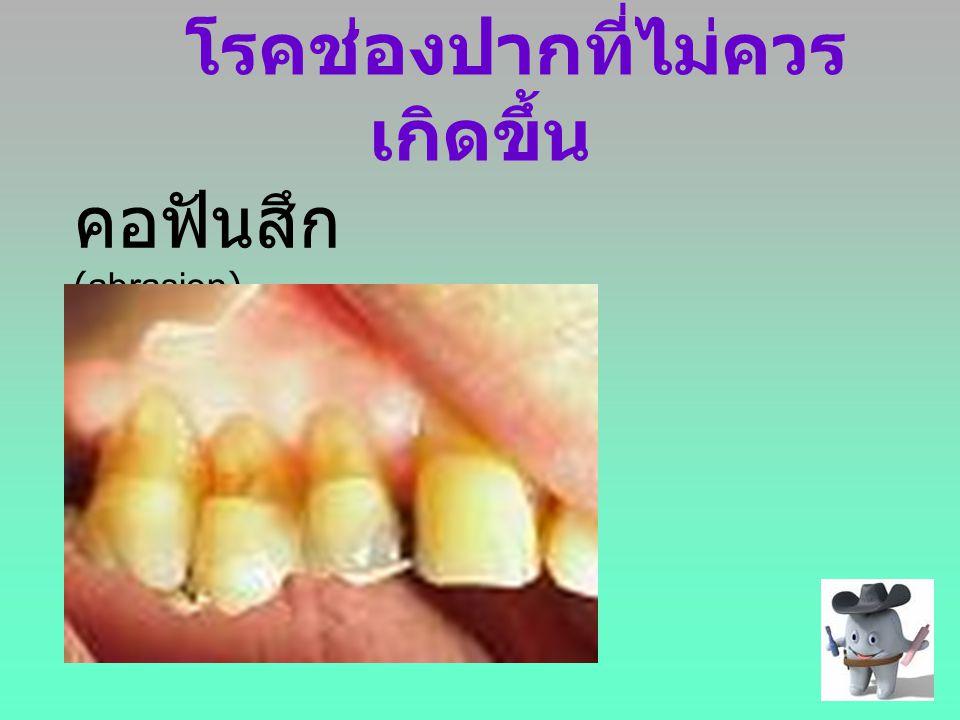 โรคช่องปากที่ไม่ควรเกิดขึ้น