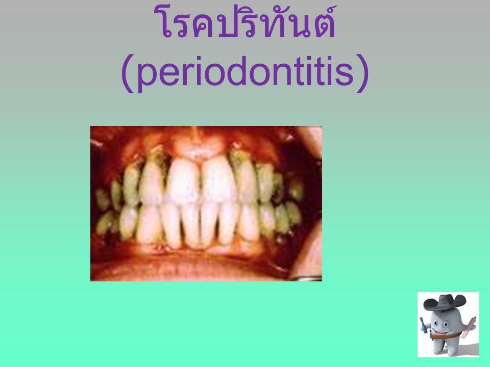 โรคปริทันต์(periodontitis)