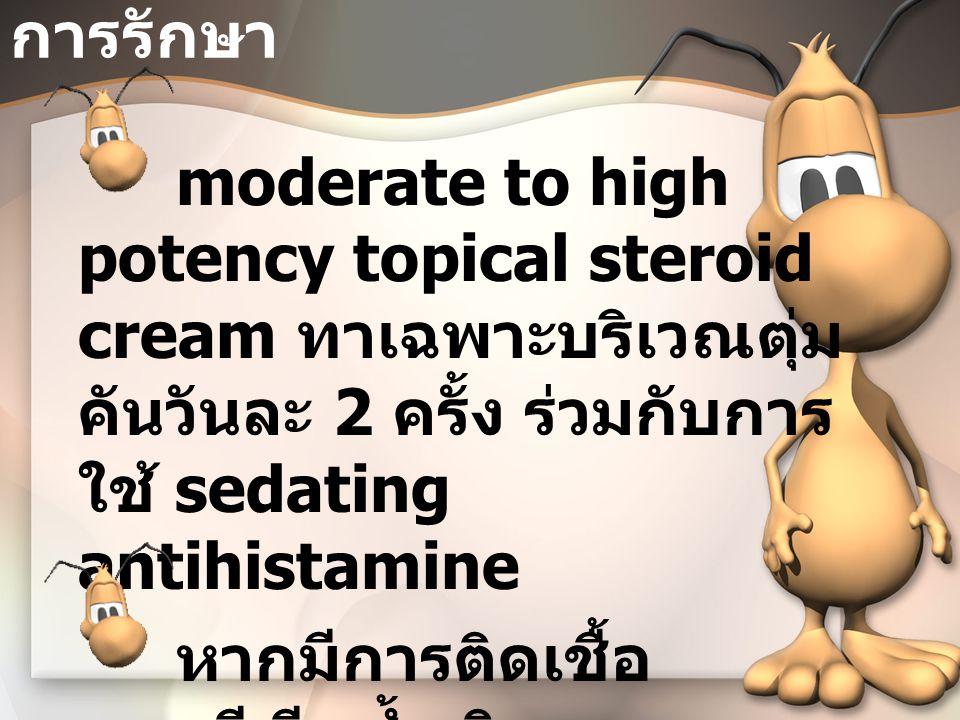 การรักษา moderate to high potency topical steroid cream ทาเฉพาะบริเวณตุ่มคันวันละ 2 ครั้ง ร่วมกับการใช้ sedating antihistamine.