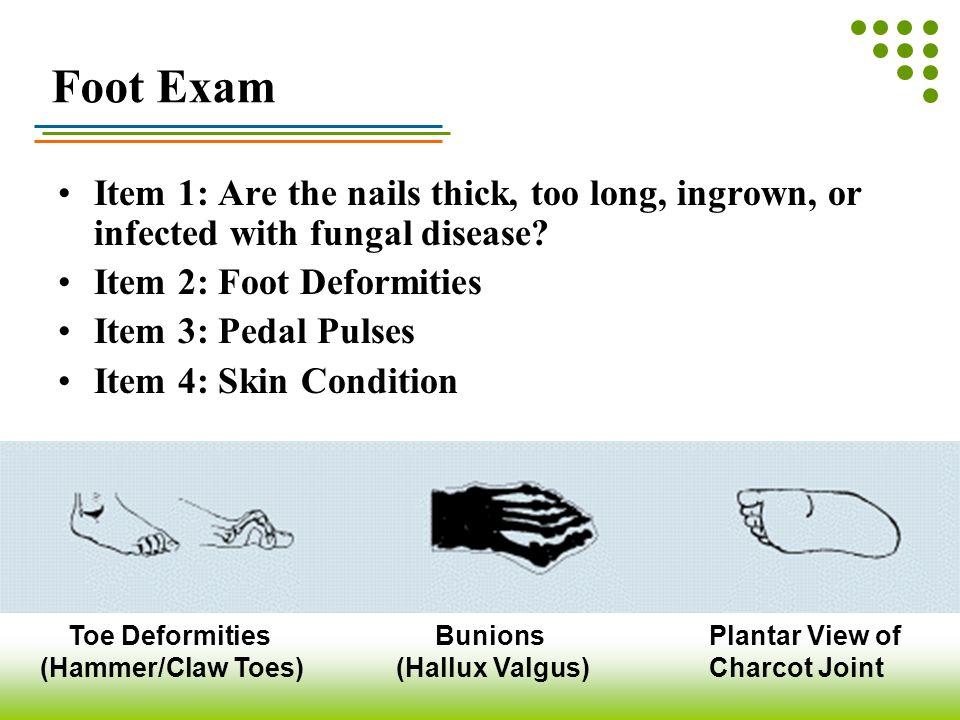 Toe Deformities (Hammer/Claw Toes) Bunions (Hallux Valgus)