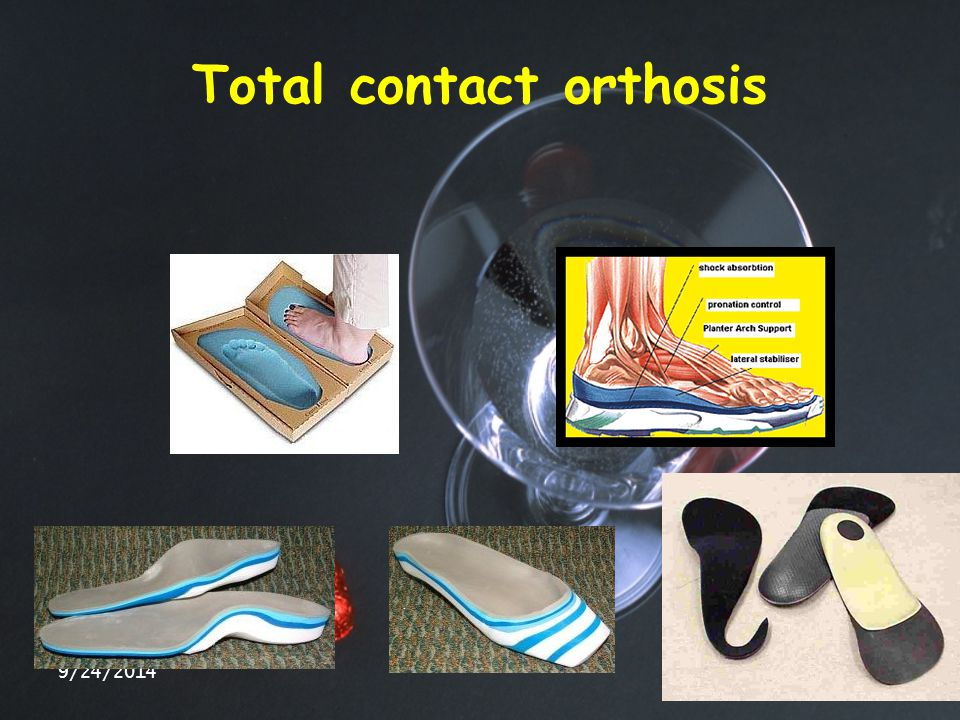 Total contact orthosis