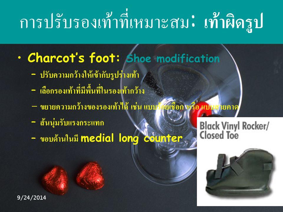 การปรับรองเท้าที่เหมาะสม: เท้าผิดรูป