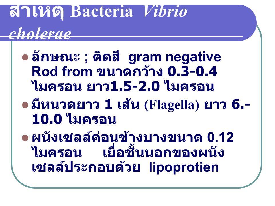 สาเหตุ Bacteria Vibrio cholerae