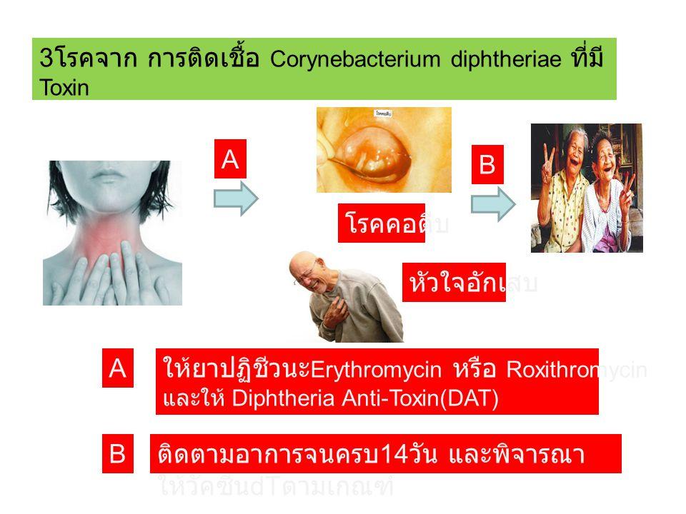 3โรคจาก การติดเชื้อ Corynebacterium diphtheriae ที่มีToxin