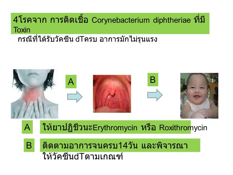 4โรคจาก การติดเชื้อ Corynebacterium diphtheriae ที่มีToxin