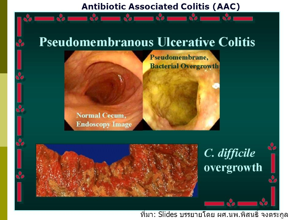 Antibiotic Associated Colitis (AAC)