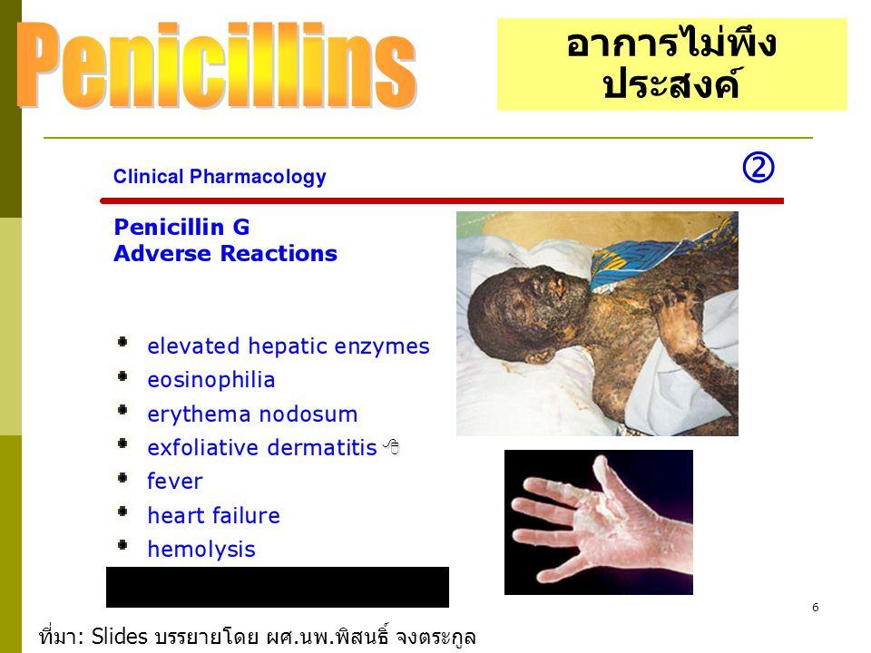 Penicillins  อาการไม่พึงประสงค์