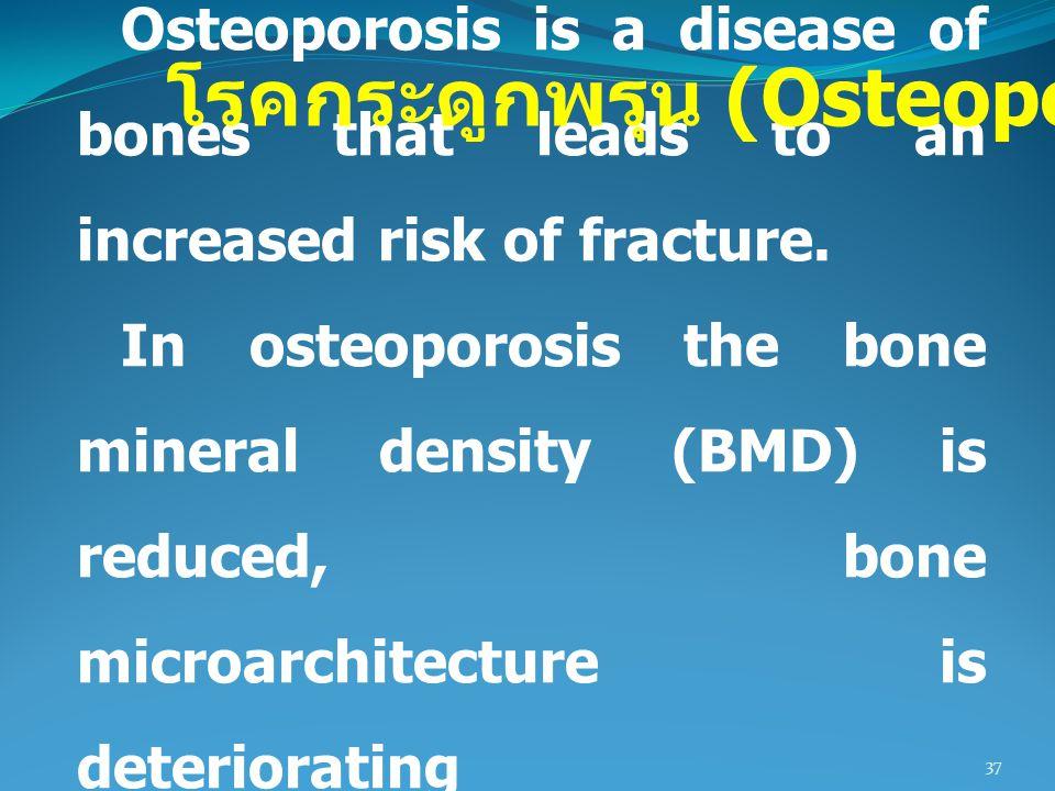 โรคกระดูกพรุน (Osteoporosis)