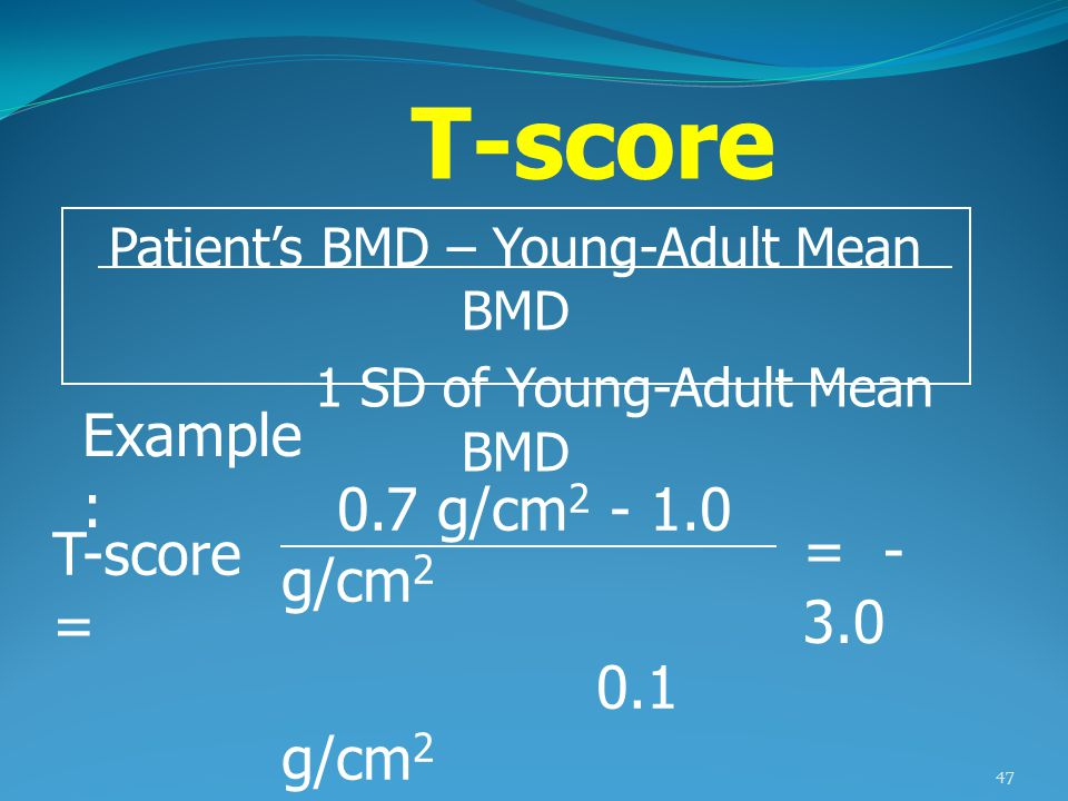 T-score Example: 0.7 g/cm2 - 1.0 g/cm2 0.1 g/cm2 T-score = = - 3.0