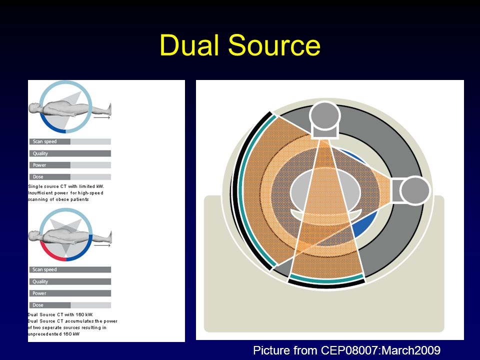 Dual Source Picture from CEP08007:March2009