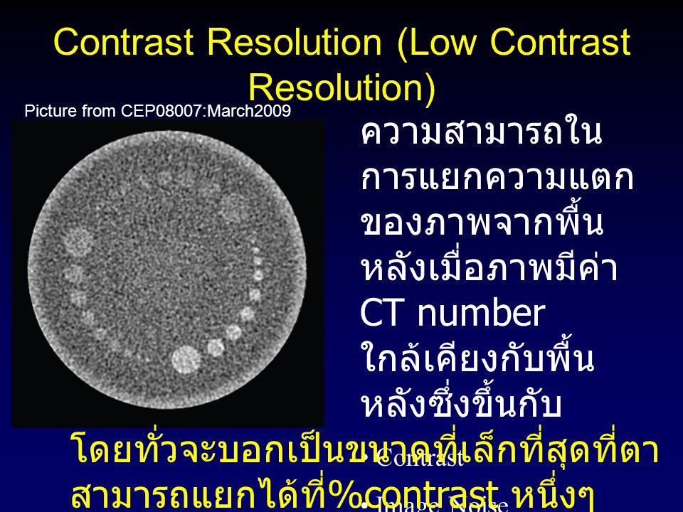 Contrast Resolution (Low Contrast Resolution)