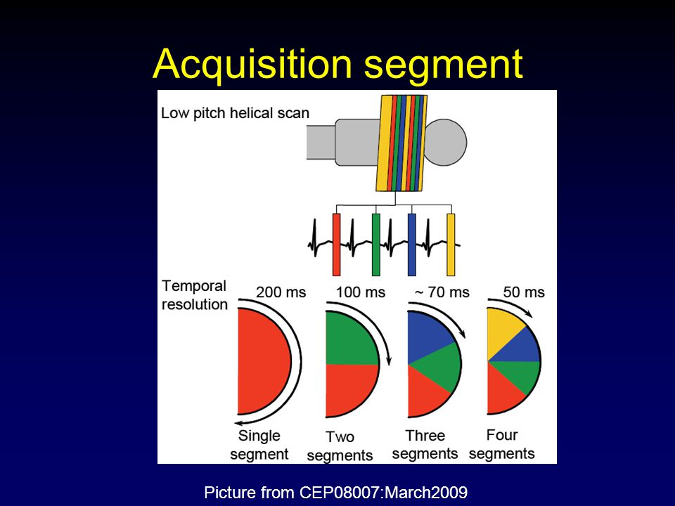 Acquisition segment Picture from CEP08007:March2009