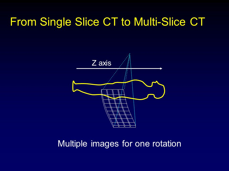 From Single Slice CT to Multi-Slice CT