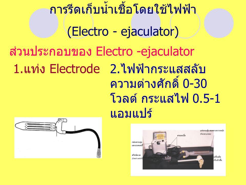การรีดเก็บน้ำเชื้อโดยใช้ไฟฟ้า (Electro - ejaculator)