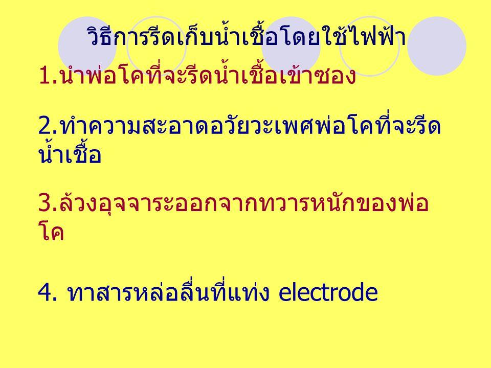 วิธีการรีดเก็บน้ำเชื้อโดยใช้ไฟฟ้า