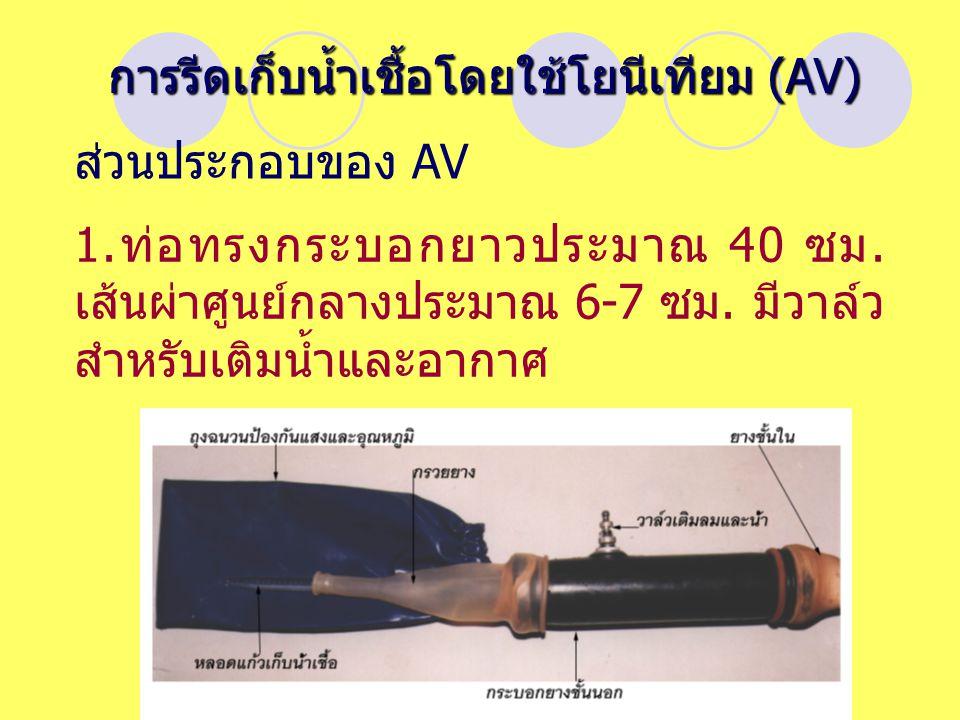 การรีดเก็บน้ำเชื้อโดยใช้โยนีเทียม (AV)