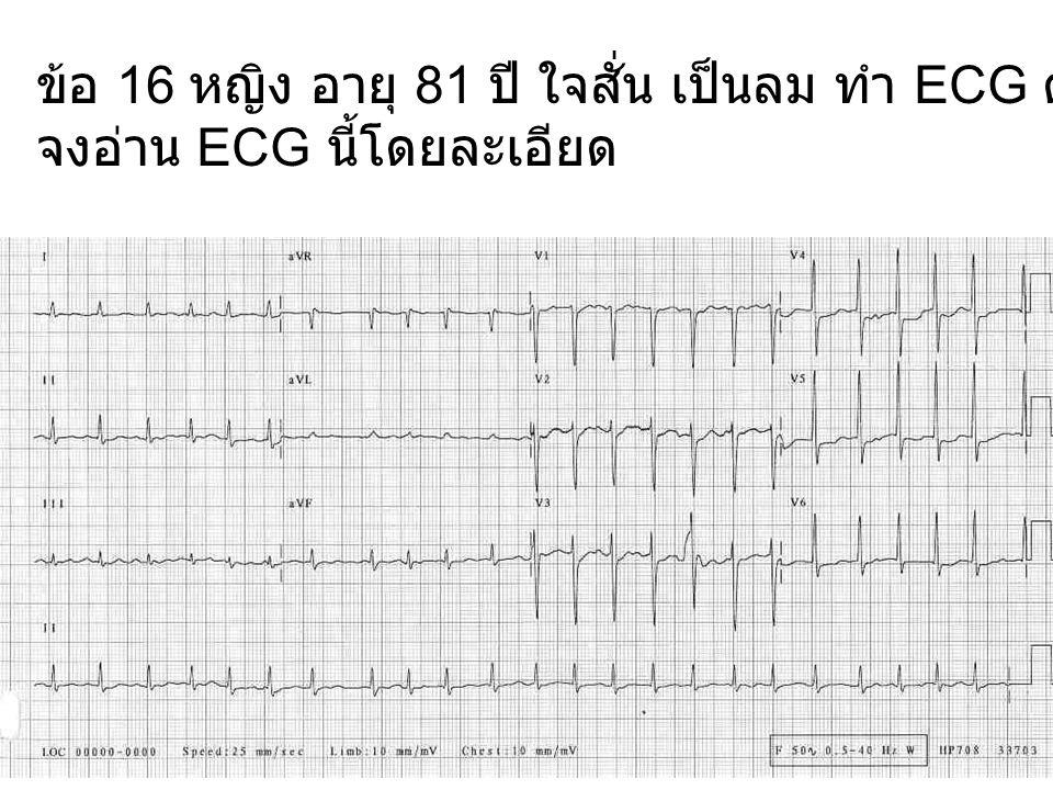 ข้อ 16 หญิง อายุ 81 ปี ใจสั่น เป็นลม ทำ ECG ดังแสดง