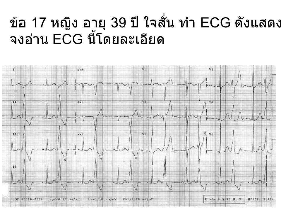 ข้อ 17 หญิง อายุ 39 ปี ใจสั่น ทำ ECG ดังแสดง