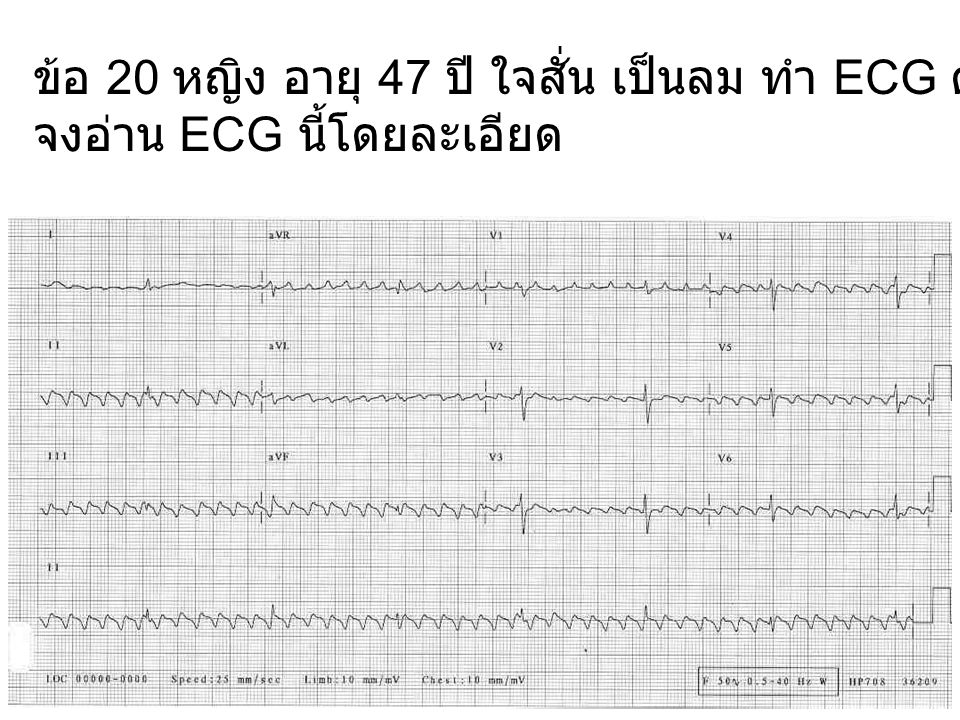ข้อ 20 หญิง อายุ 47 ปี ใจสั่น เป็นลม ทำ ECG ดังแสดง
