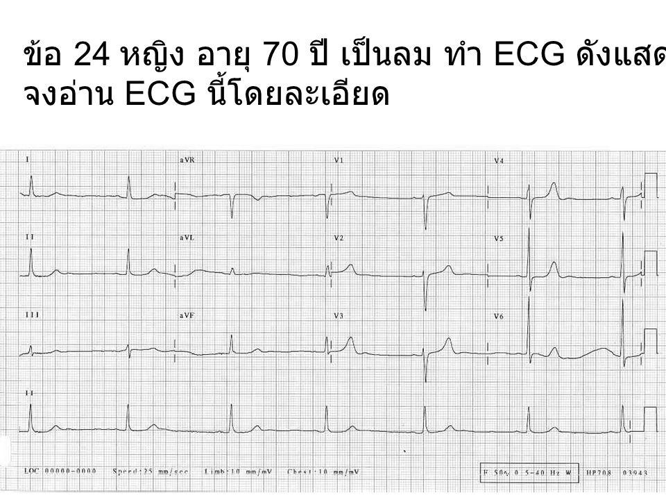 ข้อ 24 หญิง อายุ 70 ปี เป็นลม ทำ ECG ดังแสดง